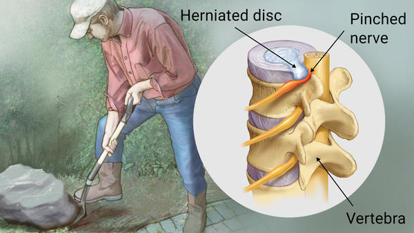 herniated disc, pinched nerve, back pain